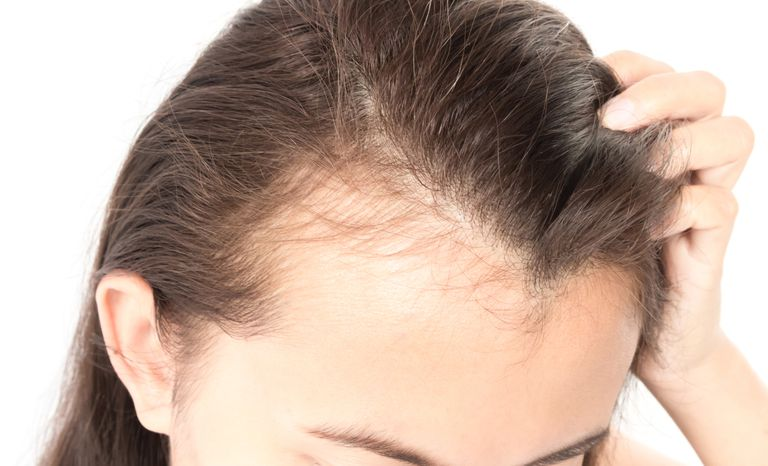 How mold allergies cause hair loss
