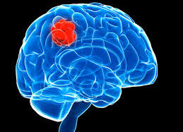Tips for managing 'brain tumor' patients