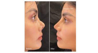 Dr. Simon Ourian's Revolutionary Non-Surgical Nose Job Technique
