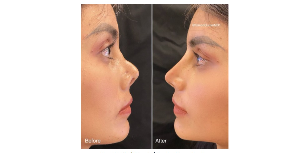 Dr. Simon Ourian's Revolutionary Non-Surgical Nose Job Technique